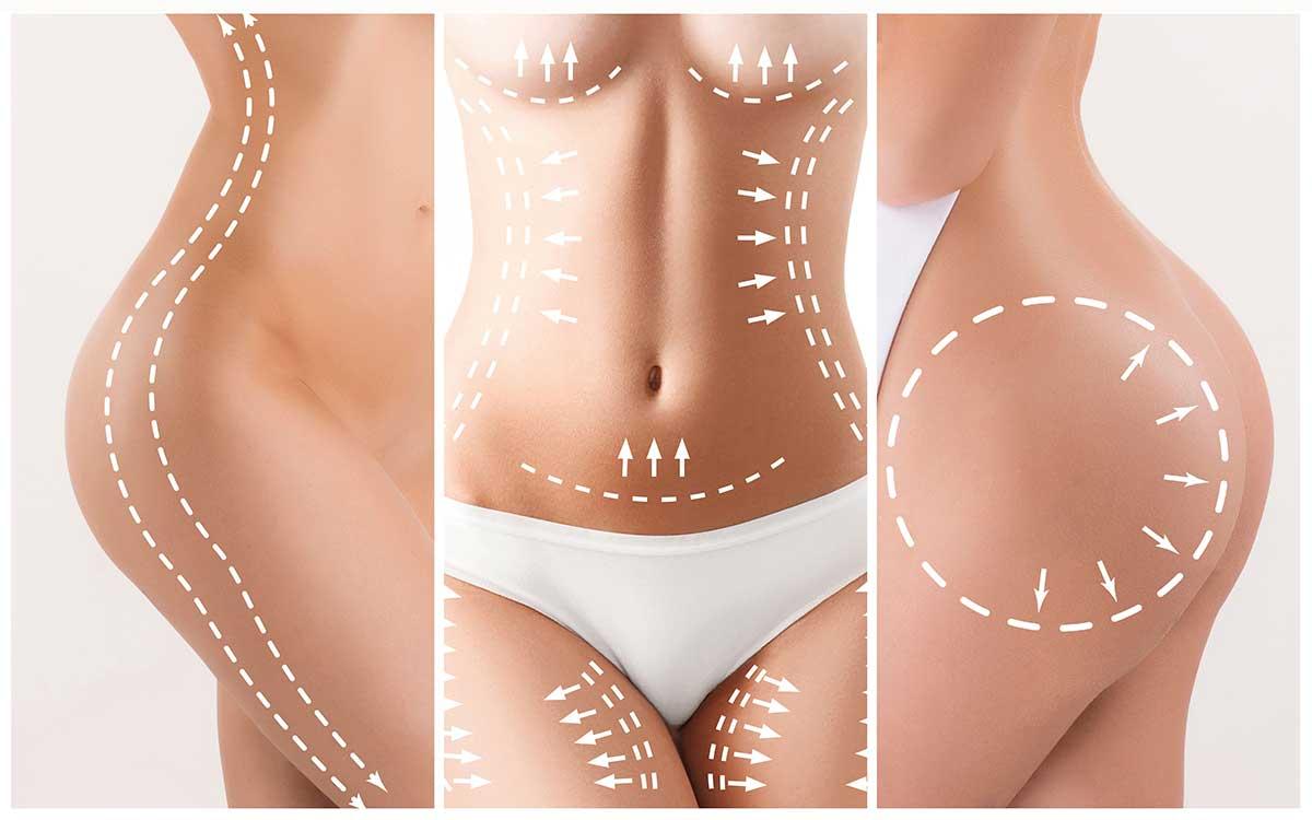 Abdominosplasty (Tummy Tuck) in Karachi 3 - Dr Zia Plastic Surgery