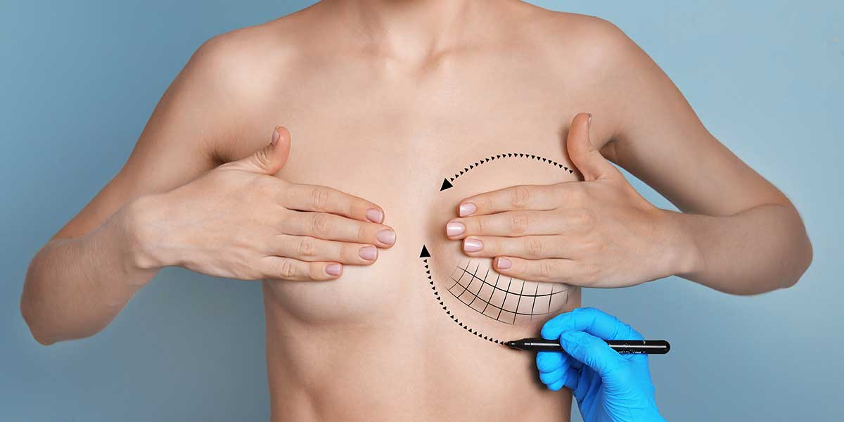 Breast Augmentation in Karachi 3 - Dr Zia Plastic Surgery