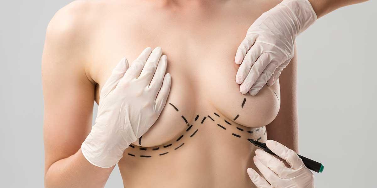 Breast Lift in Karachi 3 - Dr Zia Plastic Surgery